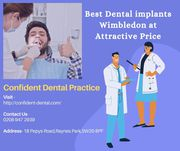 Best Dentist in Wimbledon